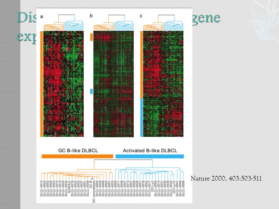 Distinct type of DLBCL by gene expression profiling