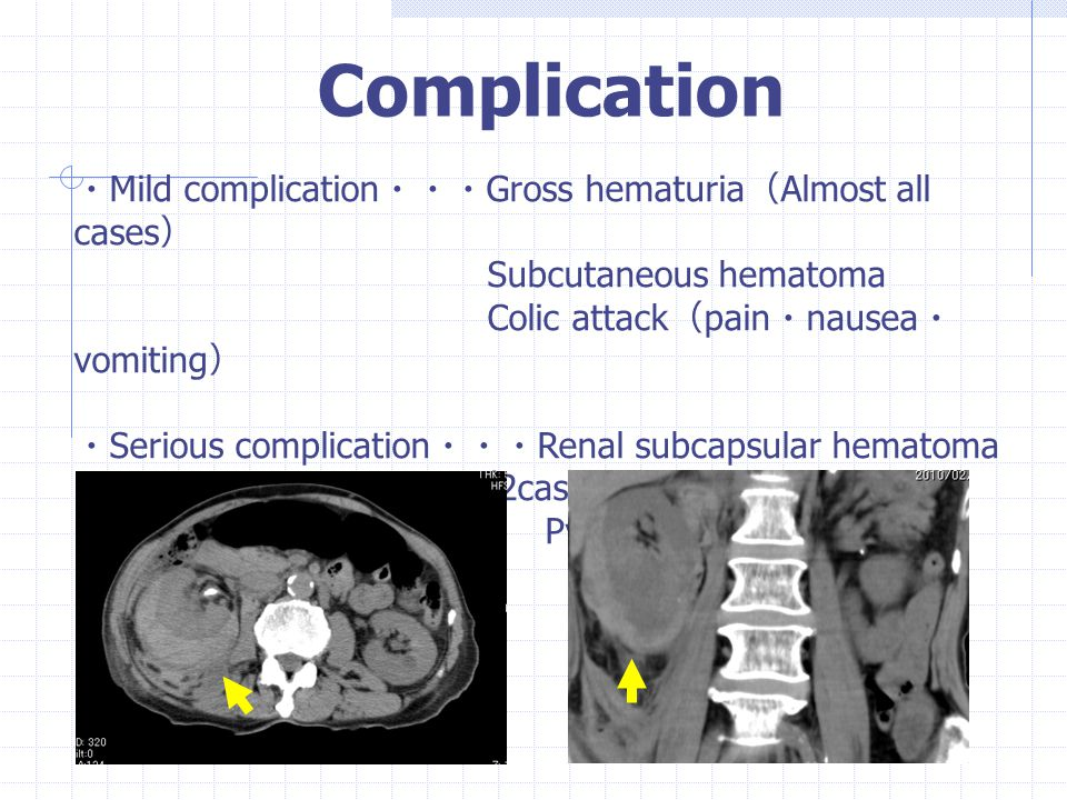 Complication ・Mild complication・・・Gross hematuria(Almost all cases)