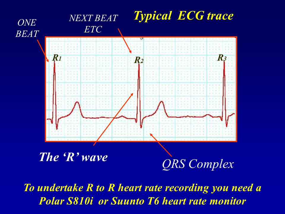 Typical ECG trace The 'R' wave