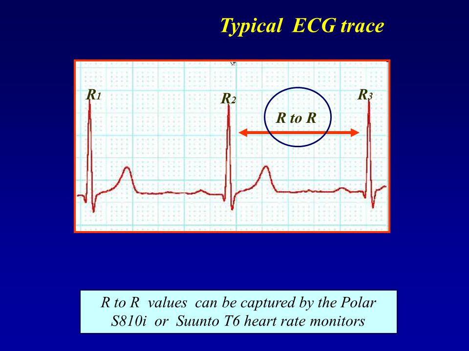 Typical ECG trace R1 R3 R2 R to R