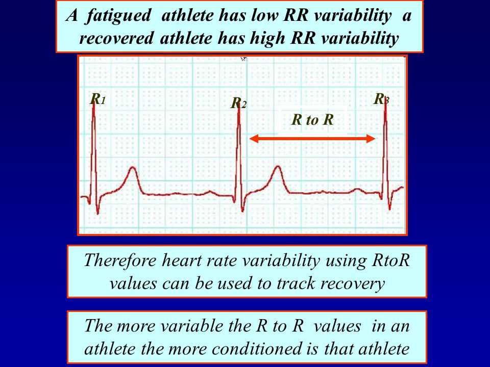 A fatigued athlete has low RR variability a recovered athlete has high RR variability