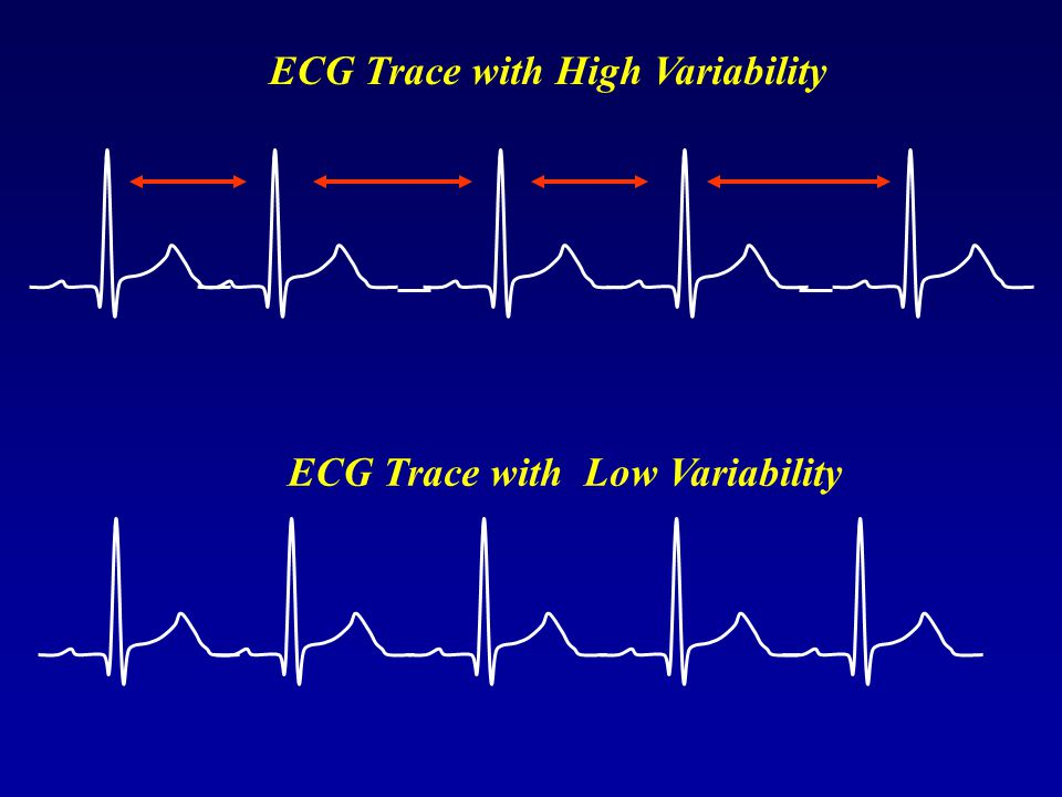 ECG Trace with High Variability ECG Trace with Low Variability