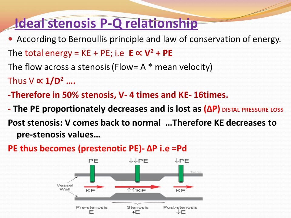 Ideal stenosis P-Q relationship