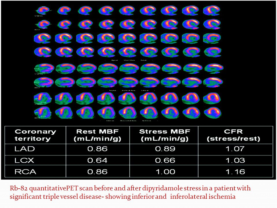Rb-82 quantitativePET scan before and after dipyridamole stress in a patient with