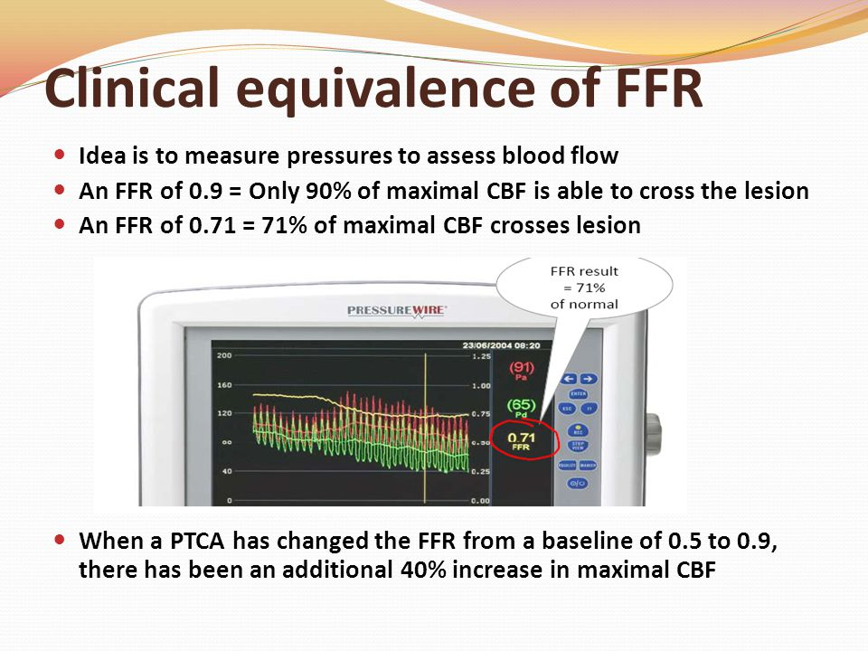 Clinical equivalence of FFR