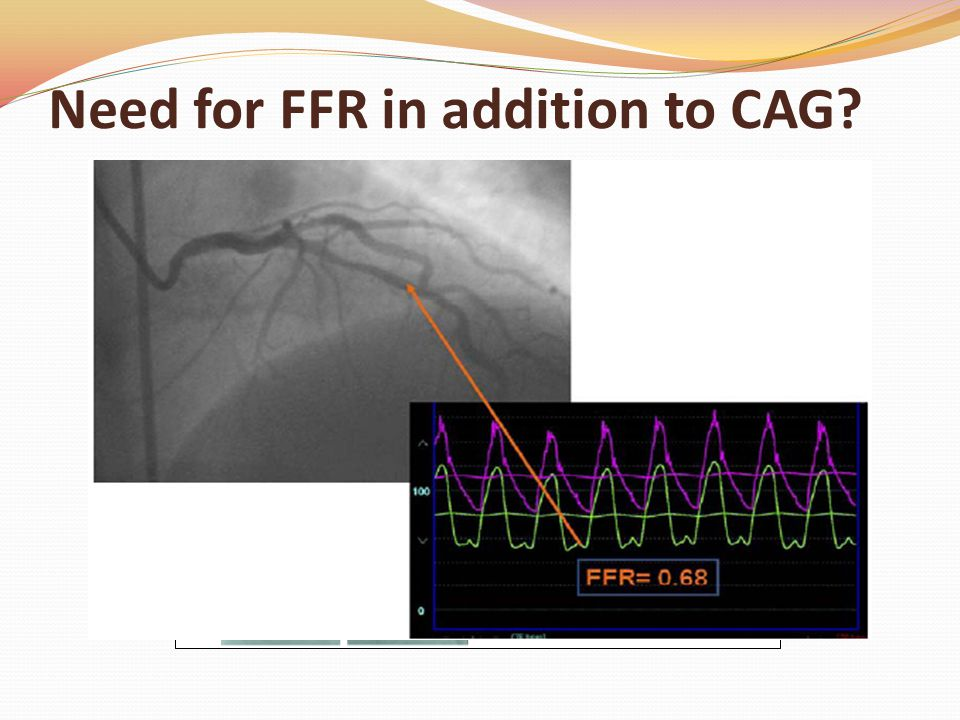 Need for FFR in addition to CAG