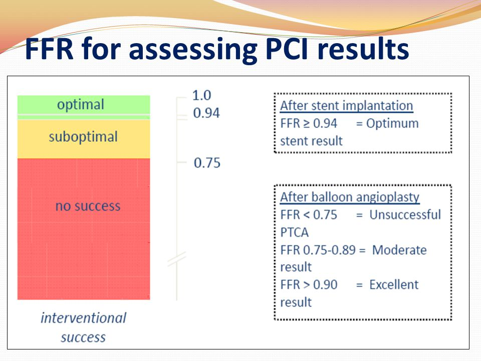 FFR for assessing PCI results
