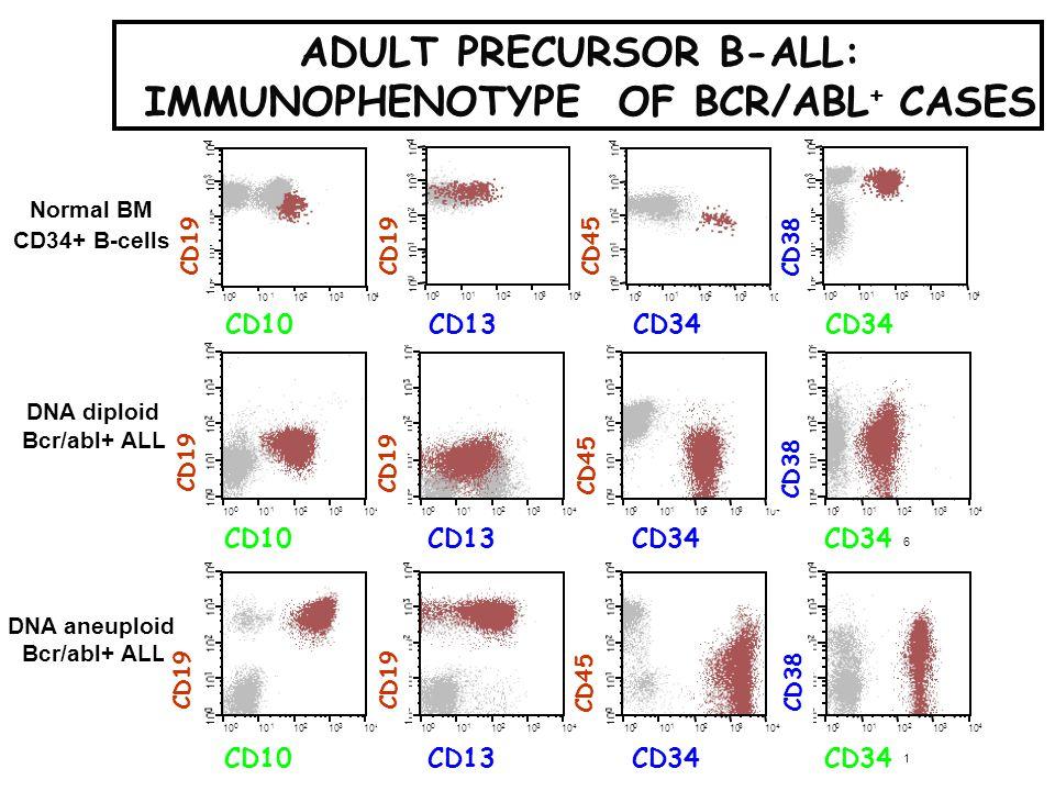 ADULT PRECURSOR B-ALL: IMMUNOPHENOTYPE OF BCR/ABL+ CASES