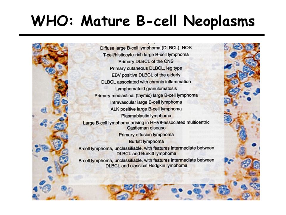 WHO: Mature B-cell Neoplasms