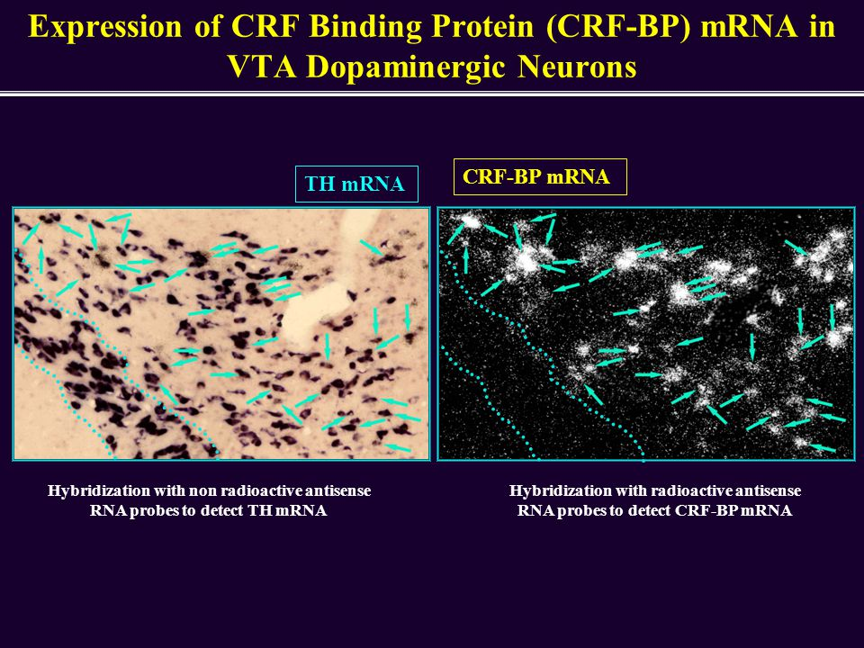 Expression of CRF Binding Protein (CRF-BP) mRNA in VTA Dopaminergic Neurons