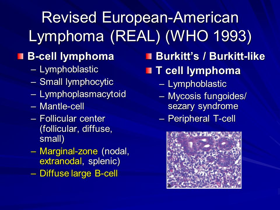 Revised European-American Lymphoma (REAL) (WHO 1993)