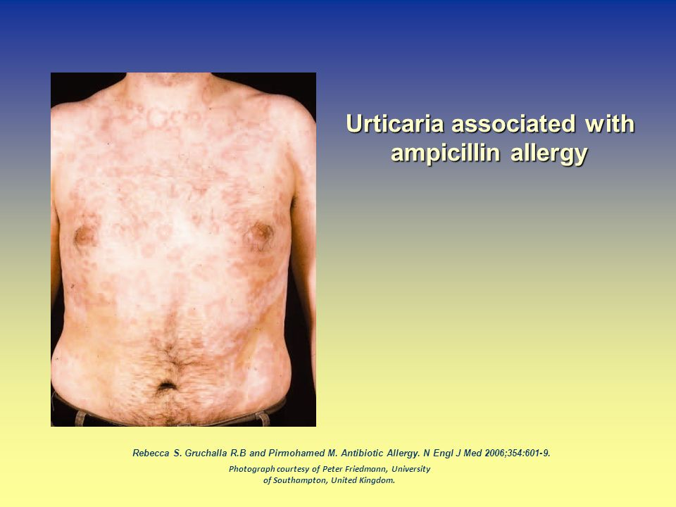 Urticaria associated with ampicillin allergy
