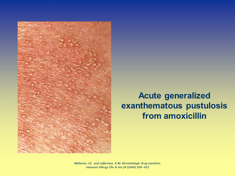 Acute generalized exanthematous pustulosis from amoxicillin
