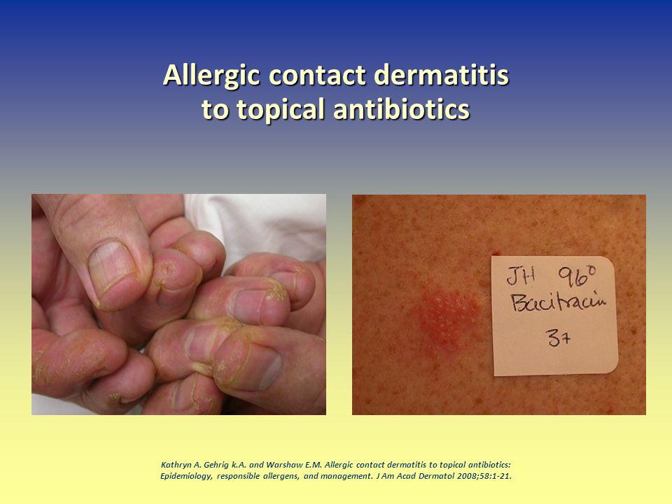 Allergic contact dermatitis to topical antibiotics