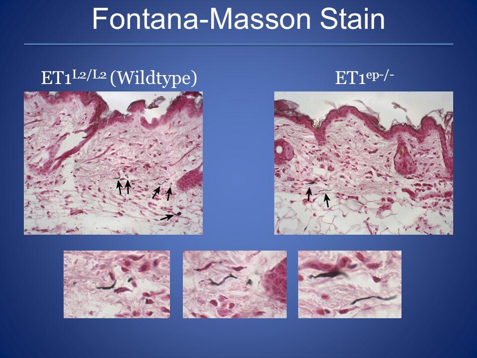 Fontana-Masson Stain ET1L2/L2 (Wildtype) ET1ep-/-