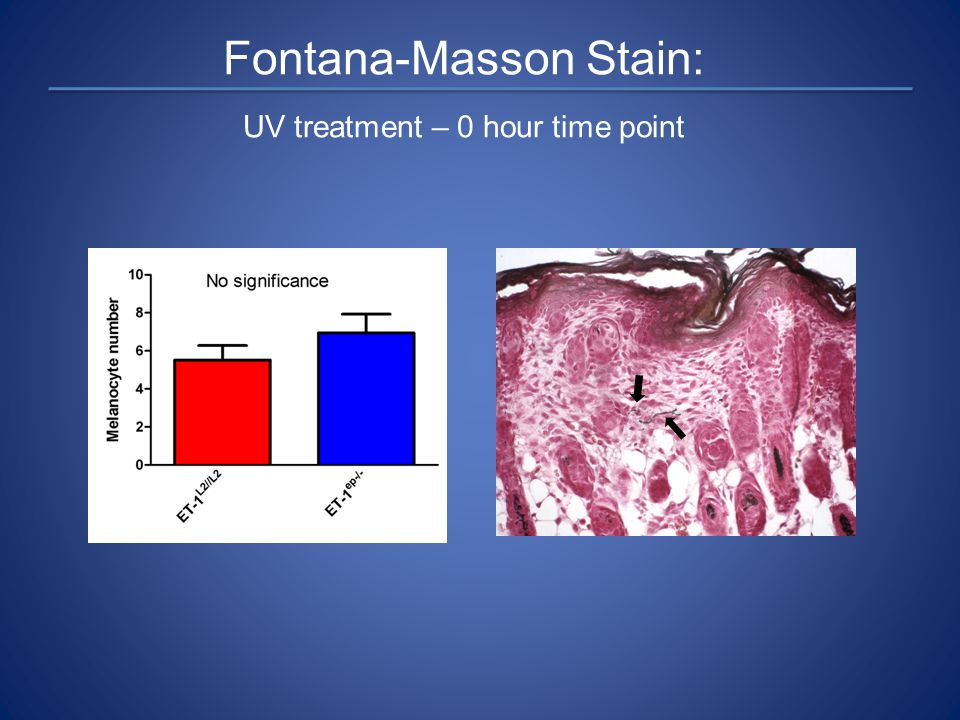 Fontana-Masson Stain: