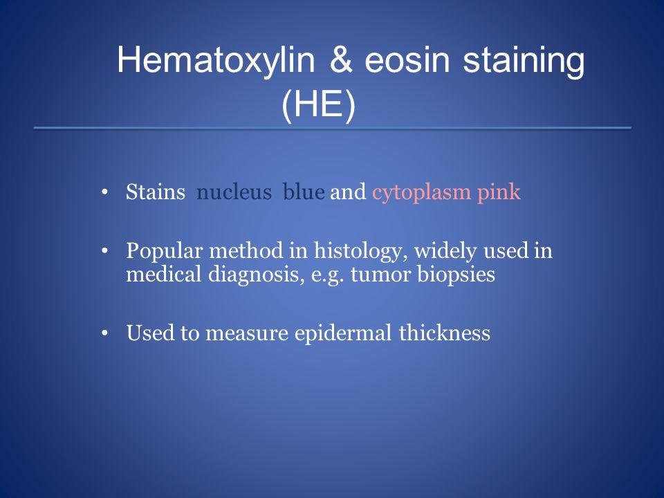 Hematoxylin & eosin staining (HE)