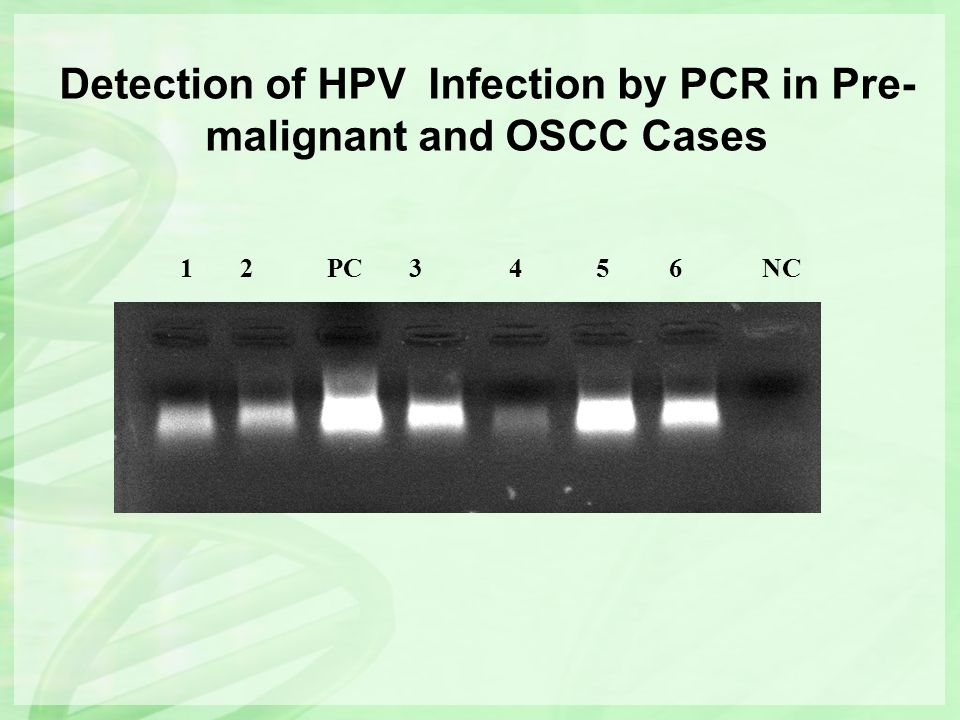 Detection of HPV Infection by PCR in Pre- malignant and OSCC Cases