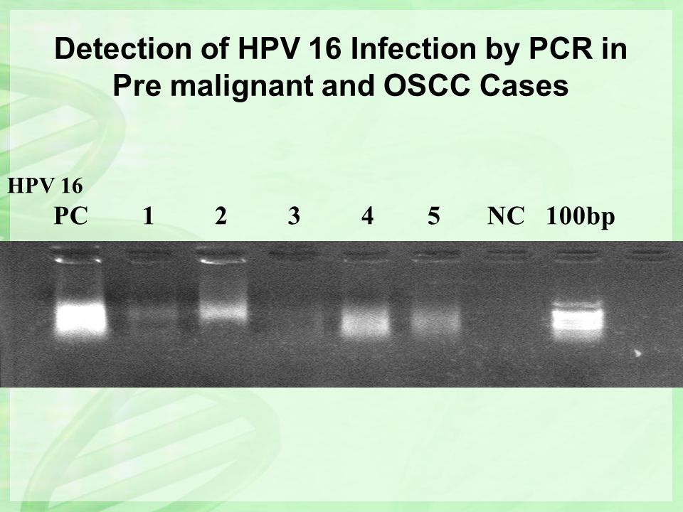 Detection of HPV 16 Infection by PCR in Pre malignant and OSCC Cases
