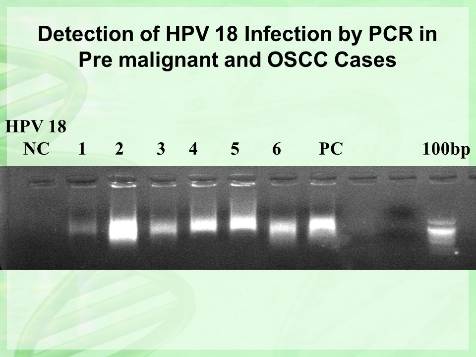 Detection of HPV 18 Infection by PCR in Pre malignant and OSCC Cases