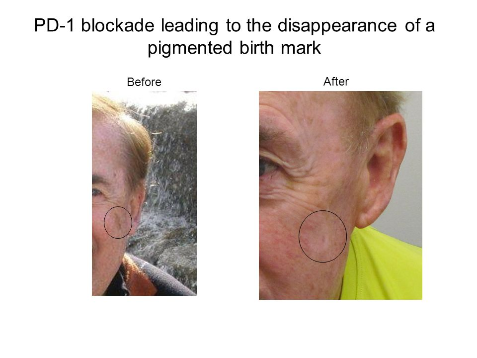 PD-1 blockade leading to the disappearance of a pigmented birth mark