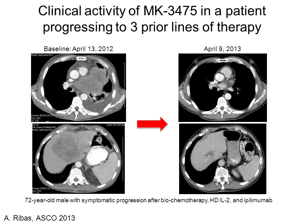 Clinical activity of MK-3475 in a patient progressing to 3 prior lines of therapy