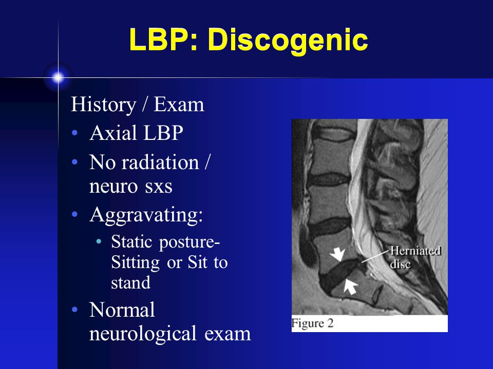 LBP: Discogenic History / Exam Axial LBP No radiation / neuro sxs