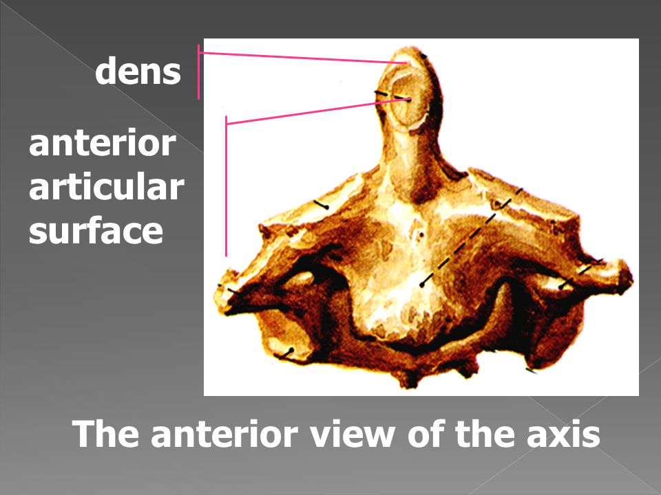 The anterior view of the axis