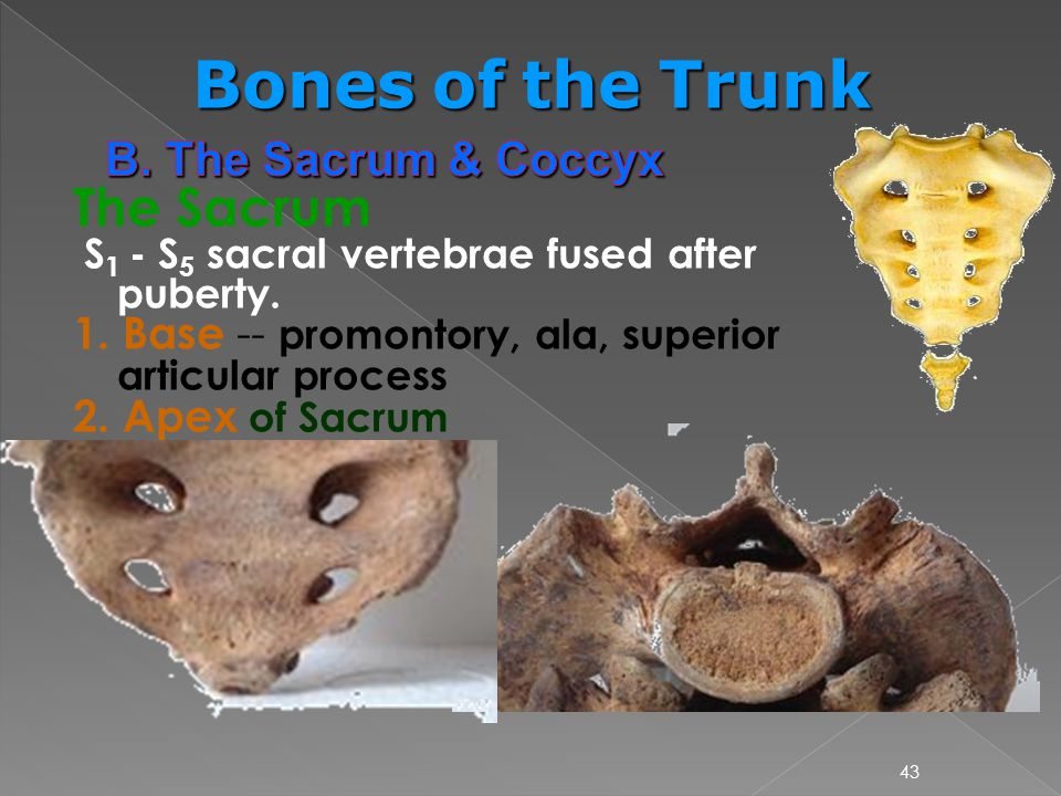 Bones of the Trunk The Sacrum B. The Sacrum & Coccyx