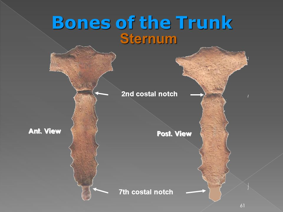 Bones of the Trunk Sternum 2nd costal notch Ant. View Post. View