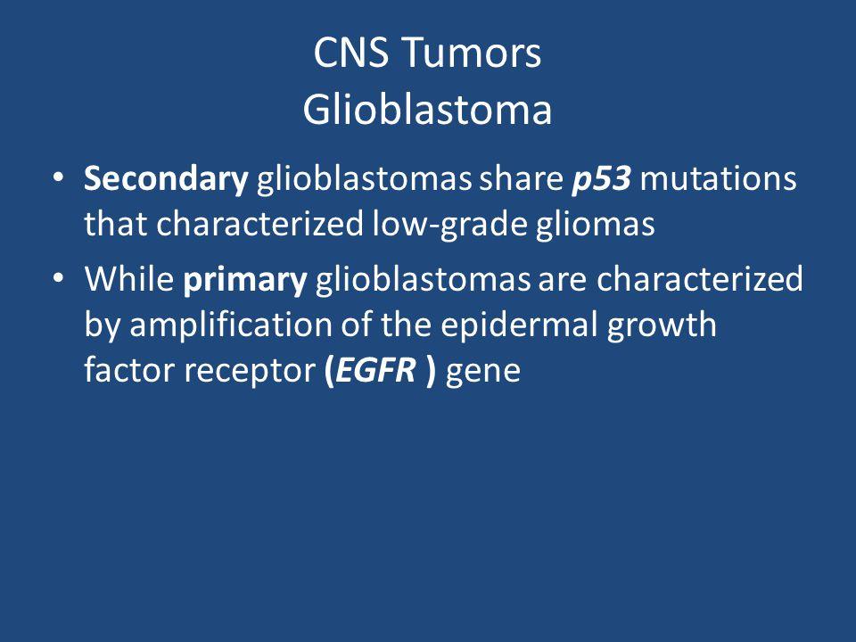 CNS Tumors Glioblastoma