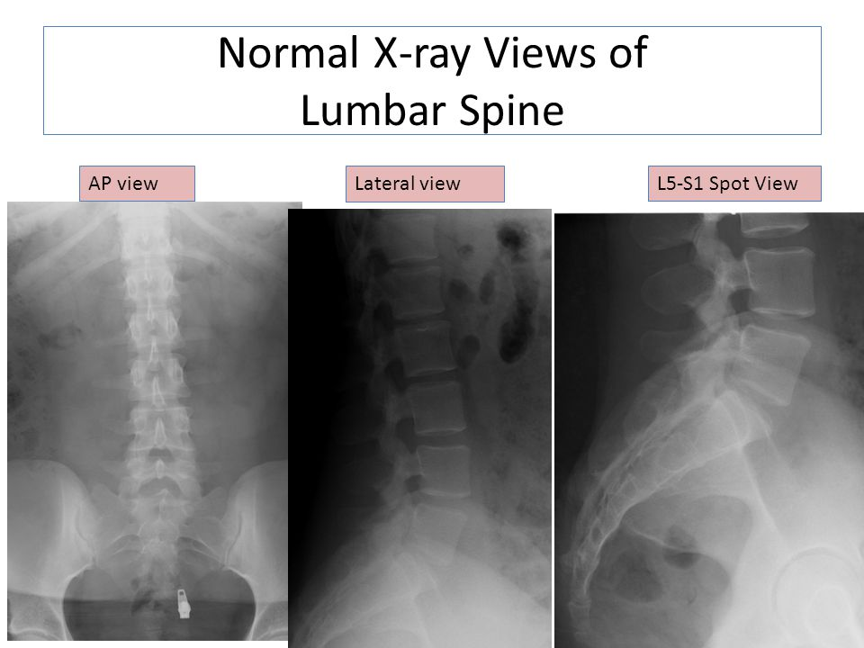 Normal X-ray Views of Lumbar Spine