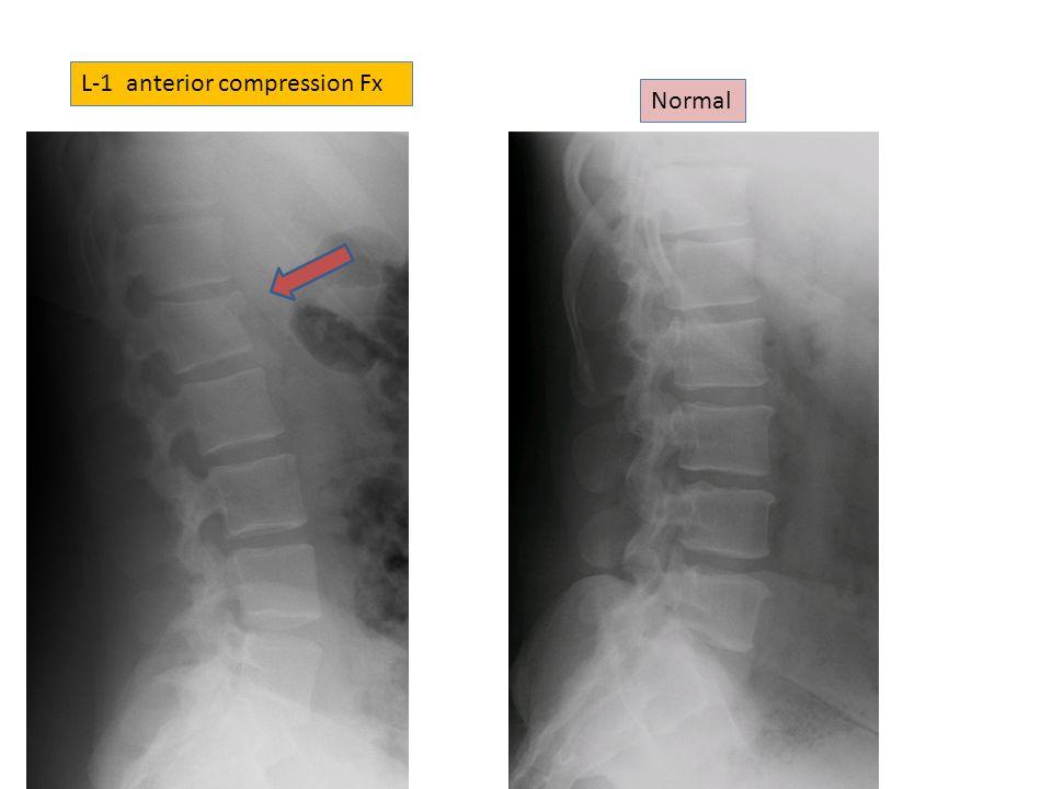L-1 anterior compression Fx