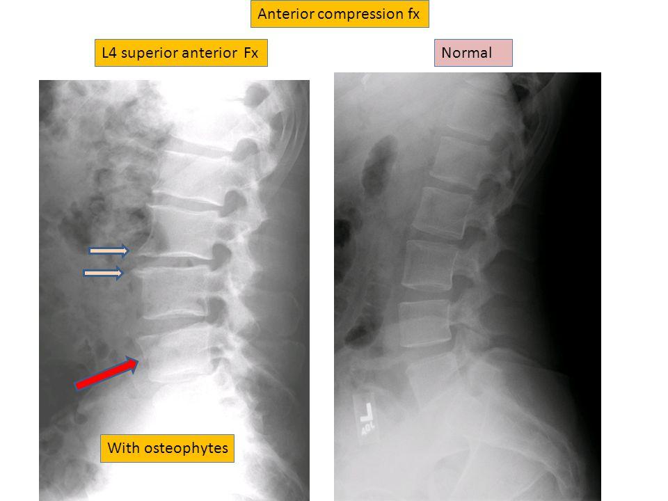 Anterior compression fx