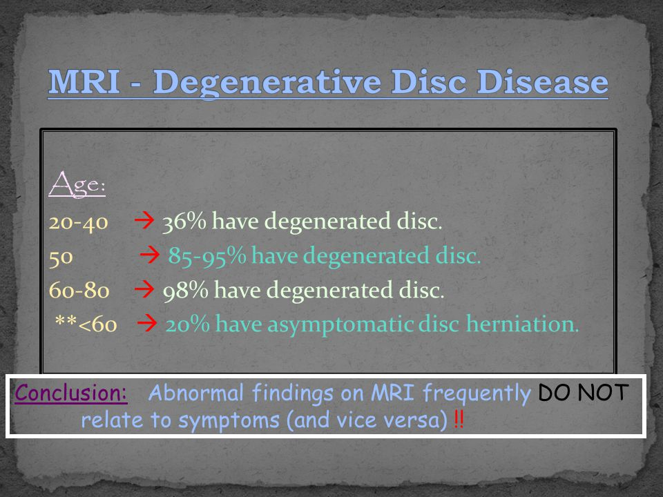 MRI - Degenerative Disc Disease