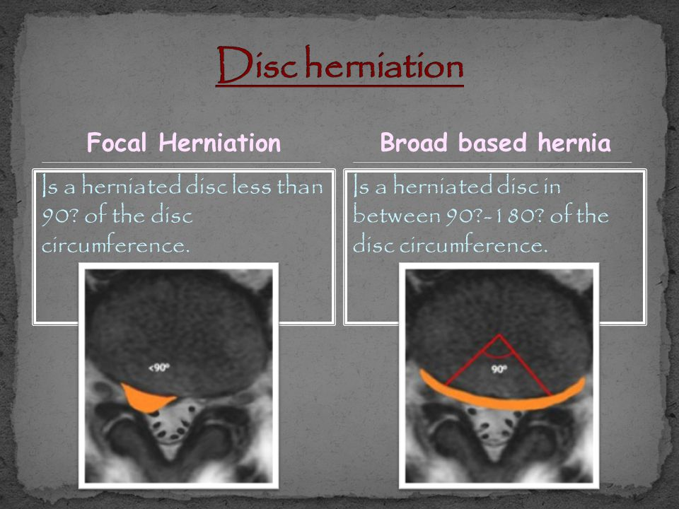 Disc herniation Focal Herniation Broad based hernia