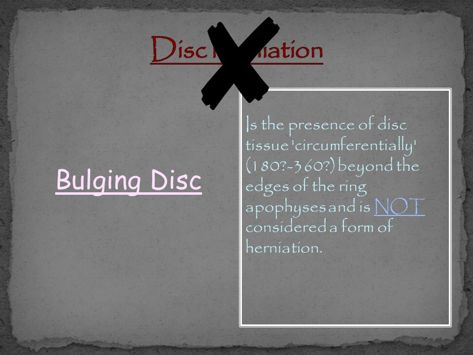 Disc herniation Bulging Disc