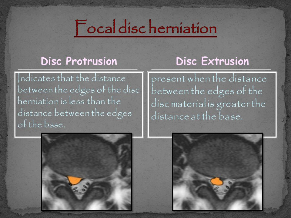 Focal disc herniation Disc Protrusion Disc Extrusion