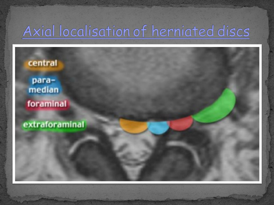 Axial localisation of herniated discs