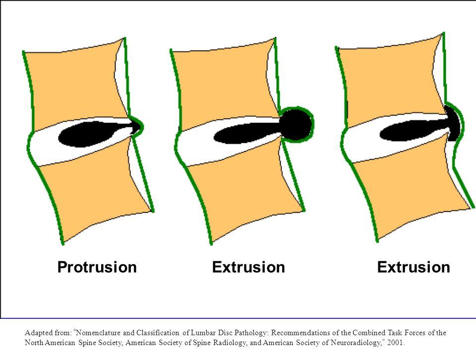Protrusion Extrusion Extrusion