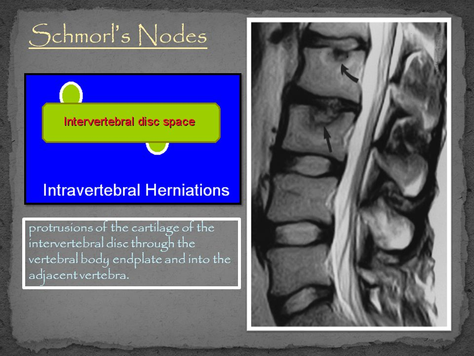 Schmorl's Nodes protrusions of the cartilage of the intervertebral disc through the vertebral body endplate and into the adjacent vertebra.
