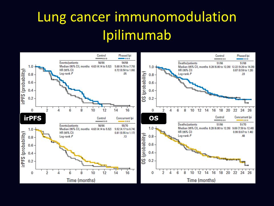 Lung cancer immunomodulation Ipilimumab