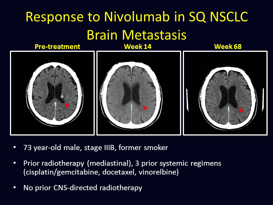 Response to Nivolumab in SQ NSCLC Brain Metastasis