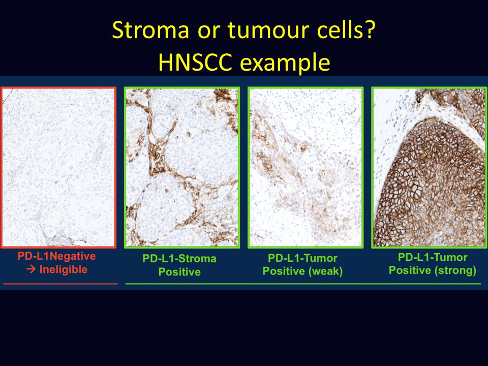 Stroma or tumour cells HNSCC example