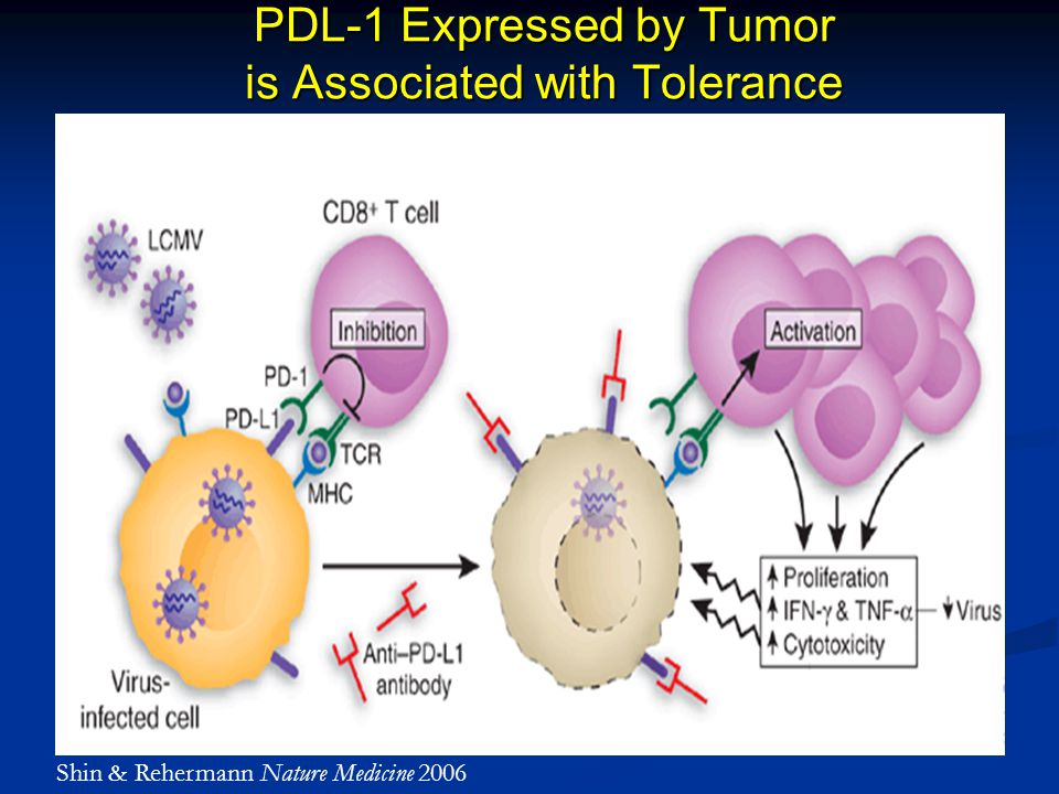 PDL-1 Expressed by Tumor is Associated with Tolerance