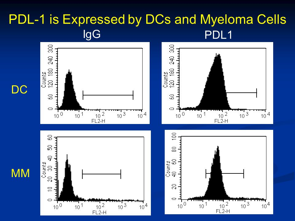 PDL-1 is Expressed by DCs and Myeloma Cells