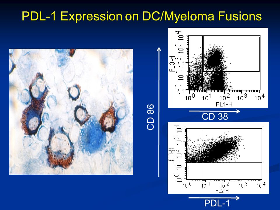 PDL-1 Expression on DC/Myeloma Fusions