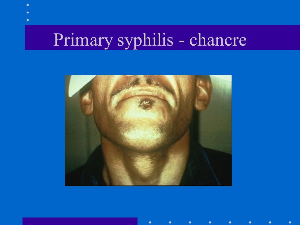 Primary syphilis - chancre