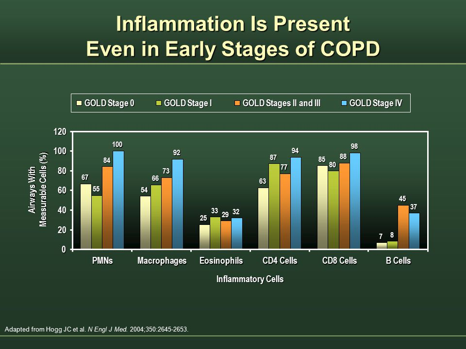 Inflammation Is Present Even in Early Stages of COPD
