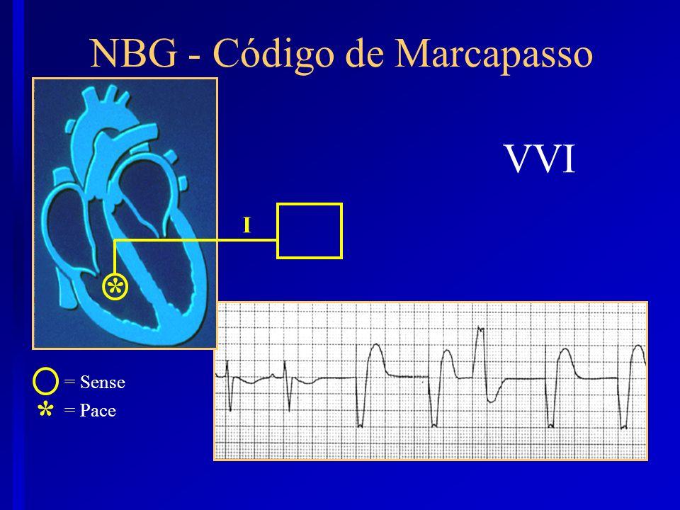 NBG - Código de Marcapasso